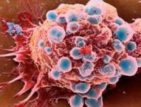 big_441479_ukraine_medicine_cancer_drugs.jpg
