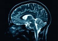 brain-scan_530.jpg