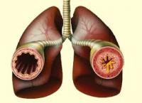 bronchiast.jpeg