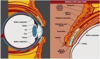 trachoma.jpeg